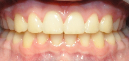 After photo of teeth