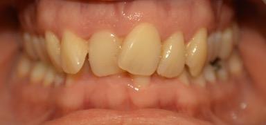 Before photo of teeth